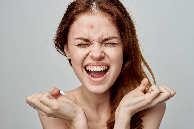 www.babadou.nl meisje met acne