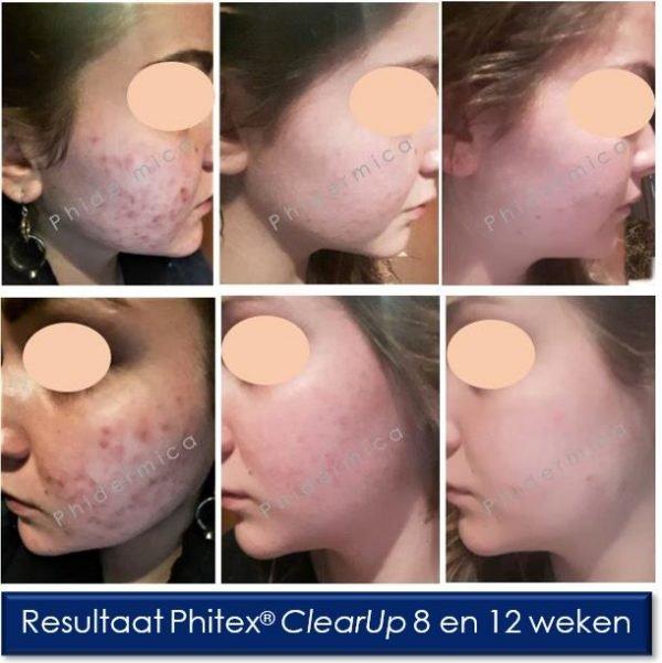 phitex cleanup spray